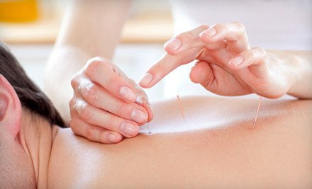 Revive Health Acupuncture
